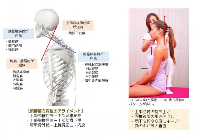 頸椎の調整