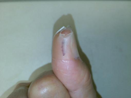親指のケガ
