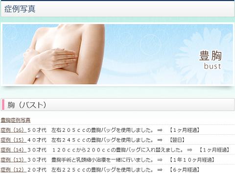 blog be 170515