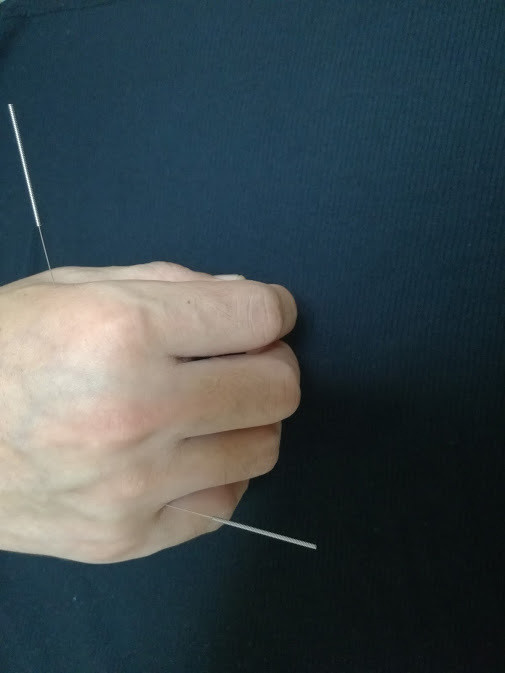 風邪の諸症状を治せる液門穴と三間穴に刺した鍼