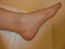 足の針(1)