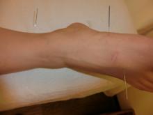 足の針(2)