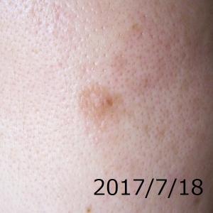2017/7/18