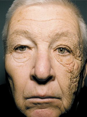 紫外線 顔半分