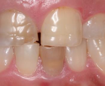 歯の変色の改善