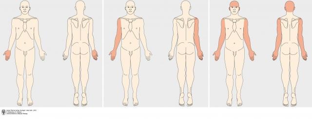 T4症候群