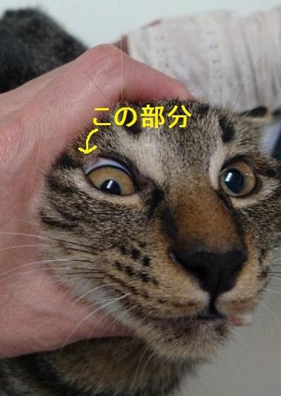 眼瞼欠損(がんけんけっそん)