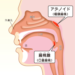 扁桃 腺 摘出 手術