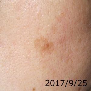 2017/9/25