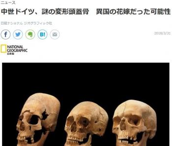 news中世ドイツ、謎の変形頭蓋骨 異国の花嫁だった可能性
