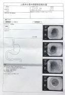 胃内視鏡検査20170925